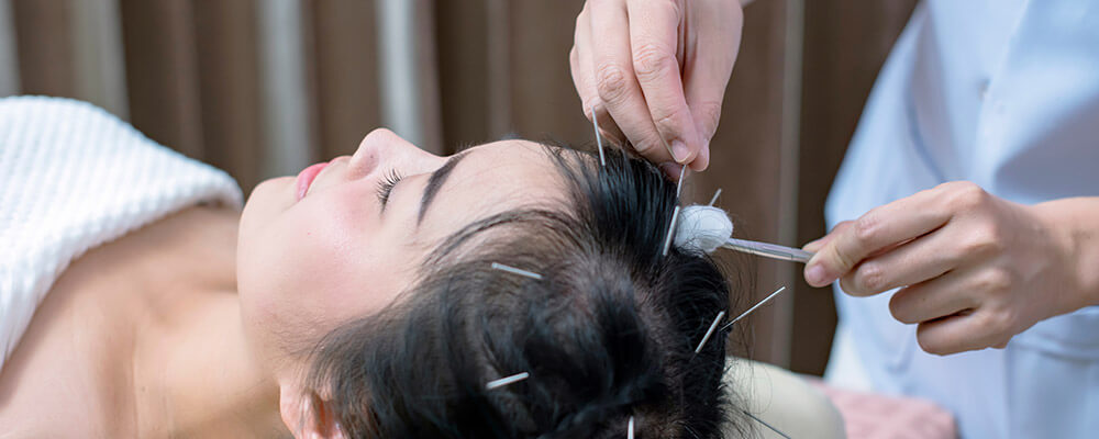 Androgenic Alopecia